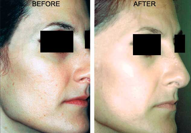 Affirm Multiplex - Before and After Treatment Photos: Woman (oblique view)