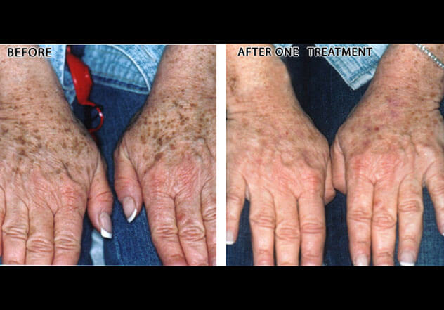 Before & After Photos : Brown Spots - Female (hands)