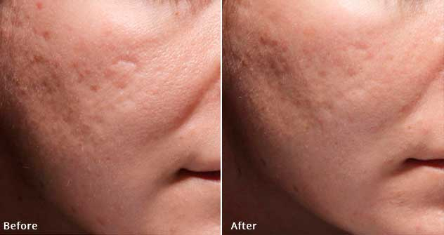 Bellafill - Before and After Treatment Photos - patient 1 (face, oblique view)