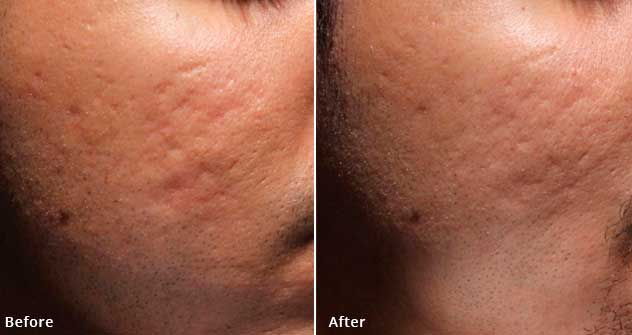 Bellafill - Before and After Treatment Photos - patient 2 (cheek, oblique view)