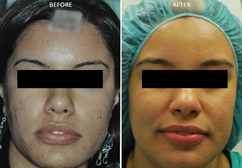 Young woman's face before and after acne treatment, cheek, front photo, patient 1