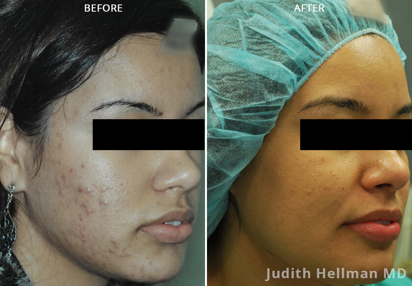 Woman's face, before and after Morpheus8 Treatments, right side oblique view, patient 6