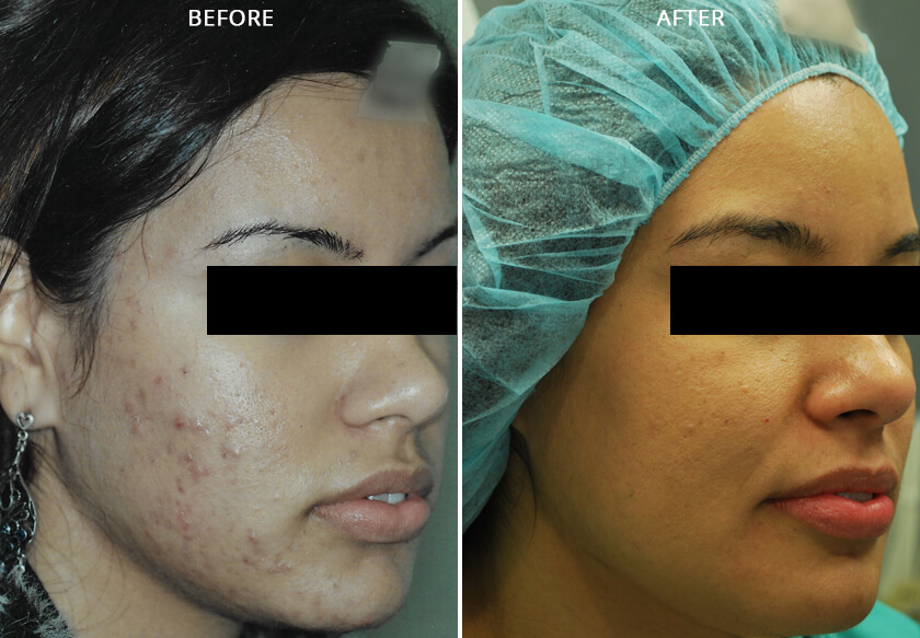 Young woman's face before and after acne treatment. Right cheek. Patient 1