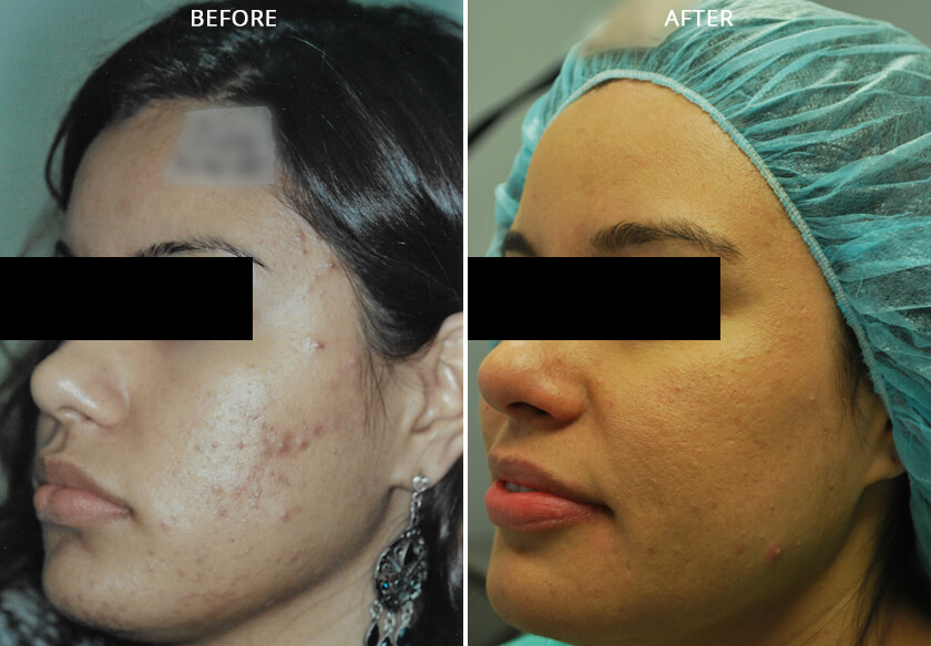 Young woman's face before and after acne treatment. Left cheek. Patient 1