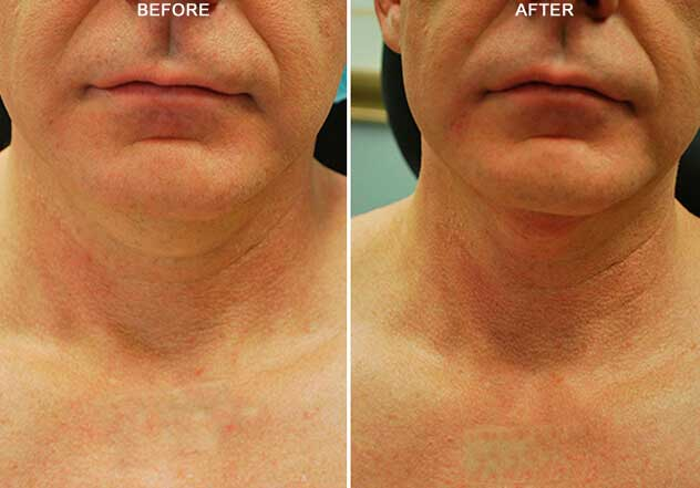 BodyFX: Before and After Treatment Photos: Male - (frontal view)