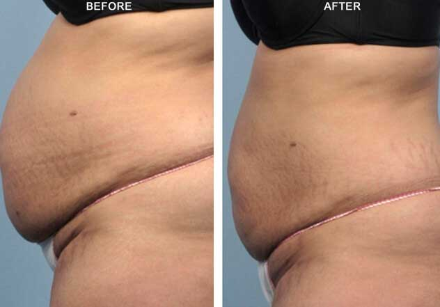 BodyFX: Before and After Treatment Photos: Female - (side view)