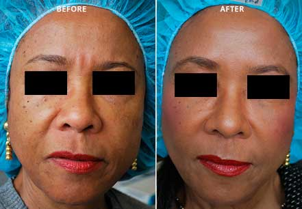 Female face, before and after botox treatment. Forehead, eyelids. Patient 6 (front view)