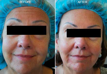 Old female face, before and after botox treatment. Forehead, chin. Patient 7 (front view)