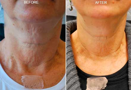 Old female neck, before and after botox treatment.  Neck, chin. Patient 8 (front view)