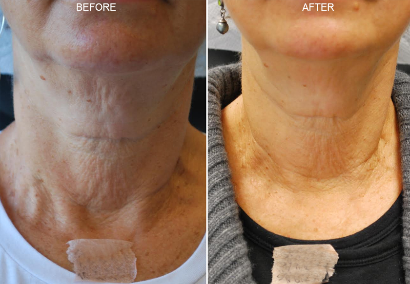 Botox Amp Dysport Before And After Photos Ny