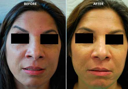 Young woman's face, before and after botox treatment. Forehead, eyelids. Patient 4 (front view)