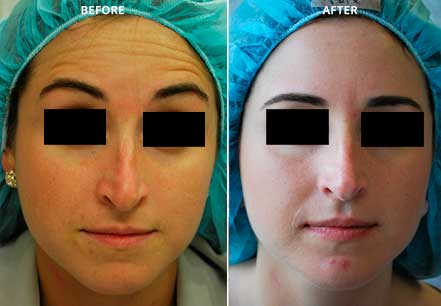 Young woman's face, before and after botox treatment. Forehead. Patient 5 (front view)