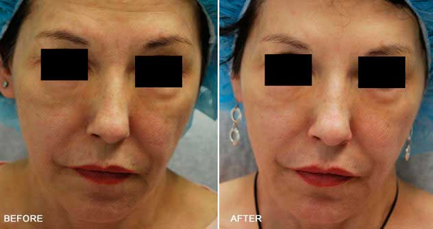 Botox® and Dysport® : Before And After Photos: Woman - (frontal view)