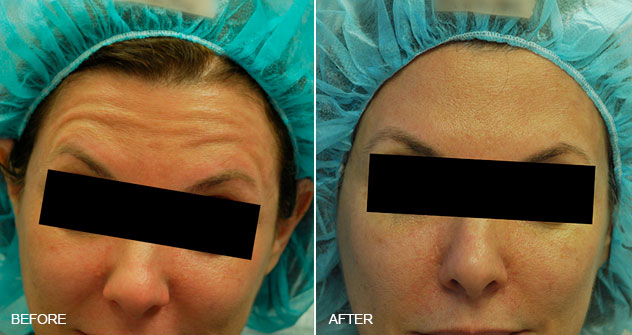Botox® and Dysport® : Before And After Photos: Female - (frontal view)