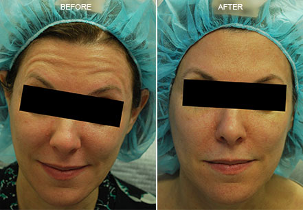 Young woman's face, before and after botox treatment. Forehead. Patient 2 (front view)