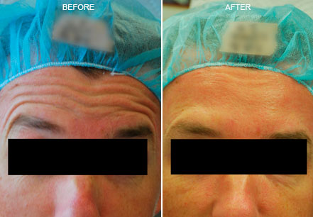 Male face before and after botox treatment. Forehead. Patient 3 (front view)