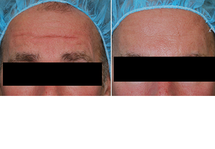 Male face before and after botox treatment. Forehead. Patient 1 (front view)