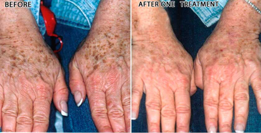 Brown Spots & Melasma: : Brown Spots - Female (hands)