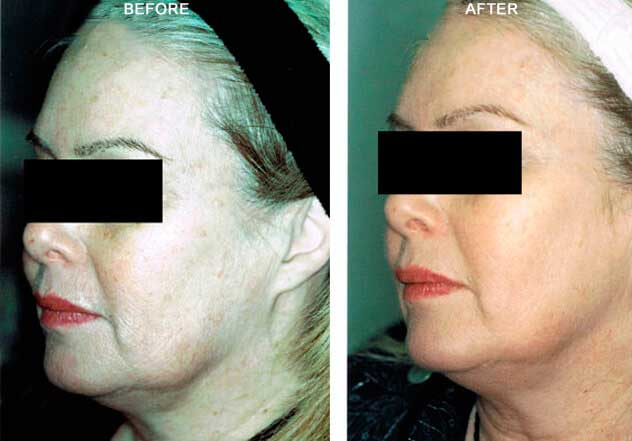 CO2  Laser - Before and After Treatment Photos: Female patient (left side, oblique view)