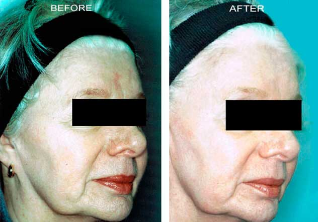 CO2 Laser - Before and After Treatment Photos: Female patient (right side, oblique view)