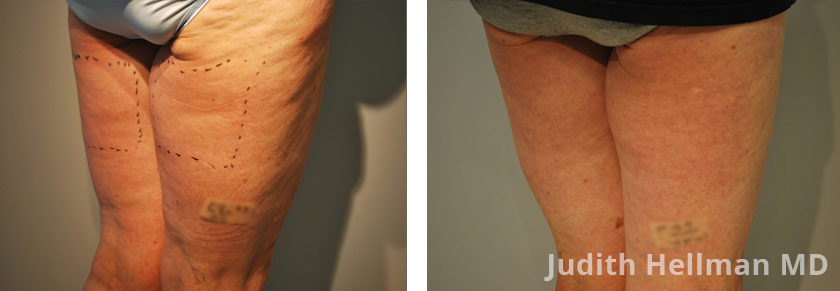 Morpheus8, Cellulite Removal treatment photos. Female - legs, buttocks, back oblique view. Patient 2