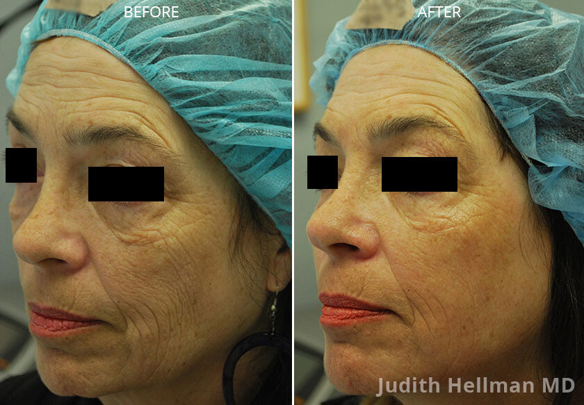 Woman's face, CO2  Laser - Before and After Treatment Photos: Female patient 1 (left side, oblique view)