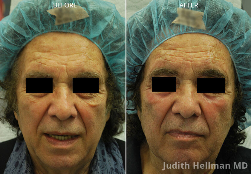 Woman's face, CO2  Laser - Before and After Treatment Photos: Female patient 2 (front view)
