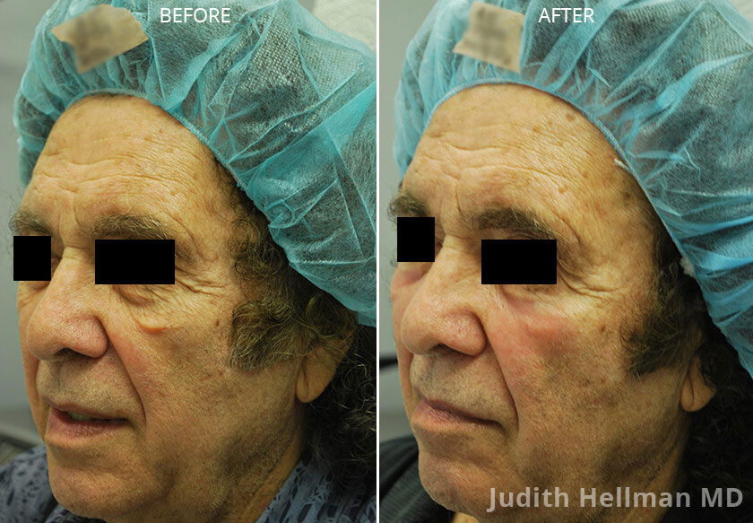 Woman's face, CO2  Laser - Before and After Treatment Photos: Female patient 2 (left side, oblique view)