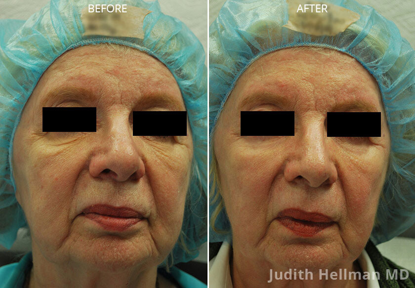 Woman's face, CO2  Laser - Before and After Treatment Photos: Female patient 3 (front view)