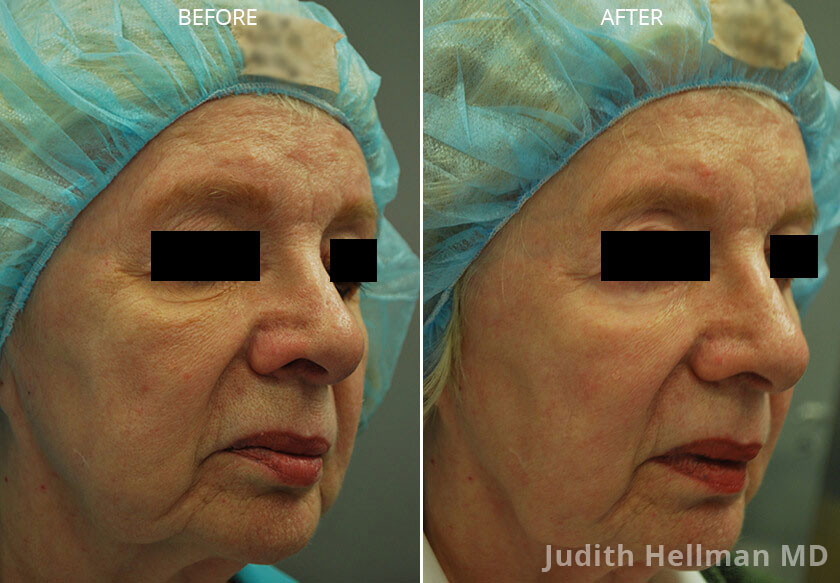 Woman's face, CO2  Laser - Before and After Treatment Photos: Female patient 3 (right side, oblique view)