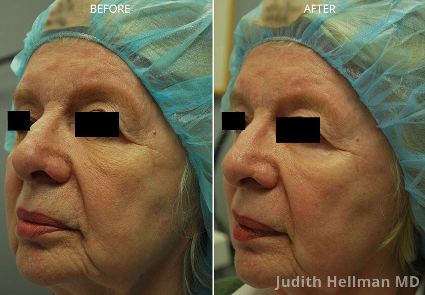 Woman's face, CO2  Laser - Before and After Treatment Photos: Female patient 3 (left side, oblique view)