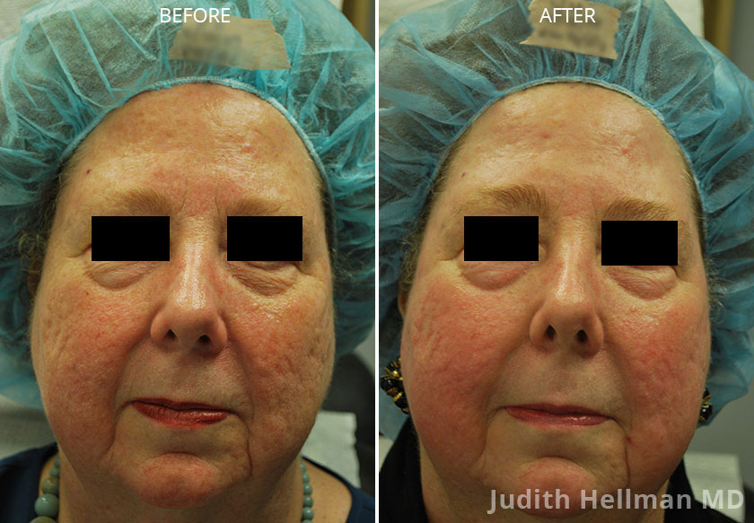 Woman's face, CO2  Laser - Before and After Treatment Photos: Female patient 4 (front view)