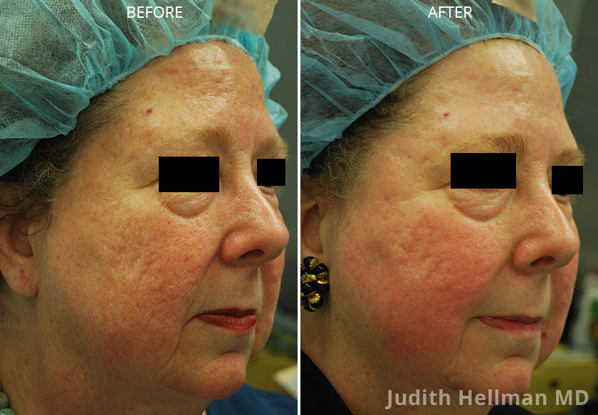Woman's face, CO2  Laser - Before and After Treatment Photos: Female patient 4 (right side, oblique view)