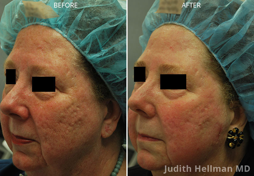 Woman's face, CO2  Laser - Before and After Treatment Photos: Female patient 4 (left side, oblique view)