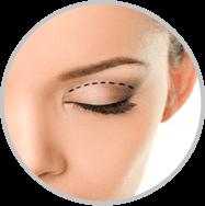 Droopy Eyelid Repair