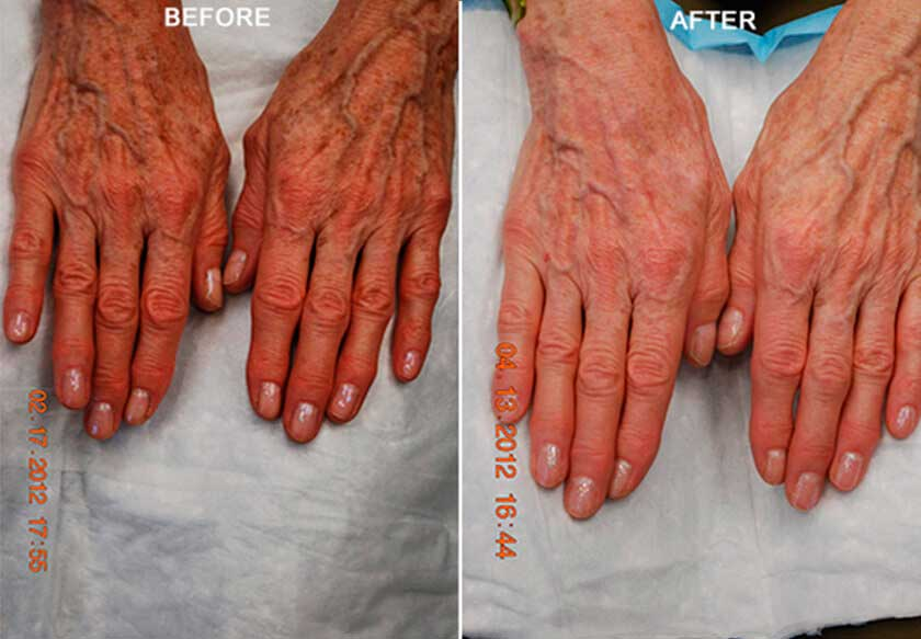 Fotofacial RF Treatment - Before and After Photos: Female (hands)