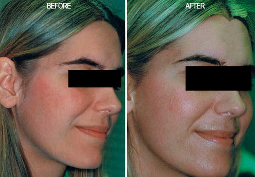 Fotofacial RF Treatment - Before and After Photos: Female (right side, oblique view)