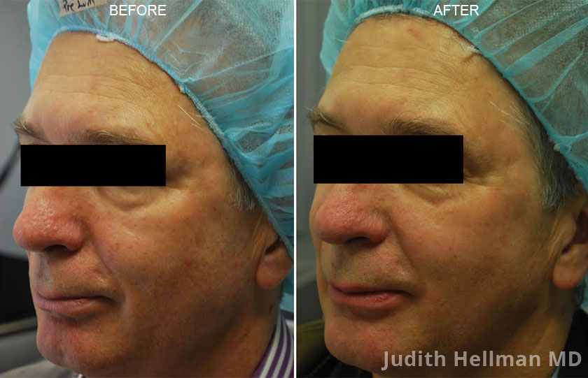 Male face, before and after Fotofacial RF laser treatment. Face, left side view - patient 4