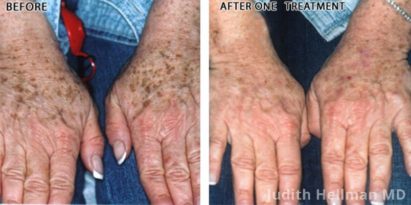 Female hand, before and after Fotofacial RF laser treatment. Hands - patient 5