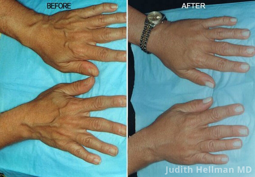 Woman's hand, before and after Fotofacial RF laser treatment. Hands - patient 10