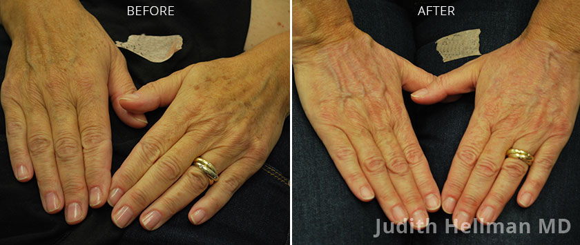 Woman's hand, before and after Fotofacial RF laser treatment. Hands - patient 2