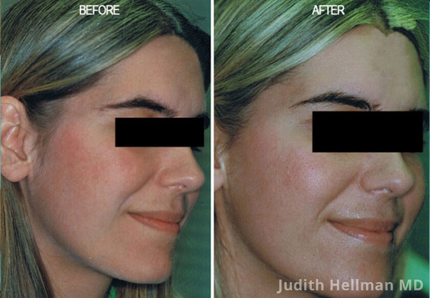 Young woman's hand, before and after Fotofacial RF laser treatment. Face, right cheek - patient 11