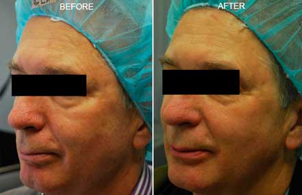 FOTOFACIAL RF. BEFORE and AFTER PHOTOS: Female (hands; top view)