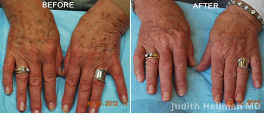 Old woman's hand, before and after Fotofacial RF laser treatment. Hands - patient 6