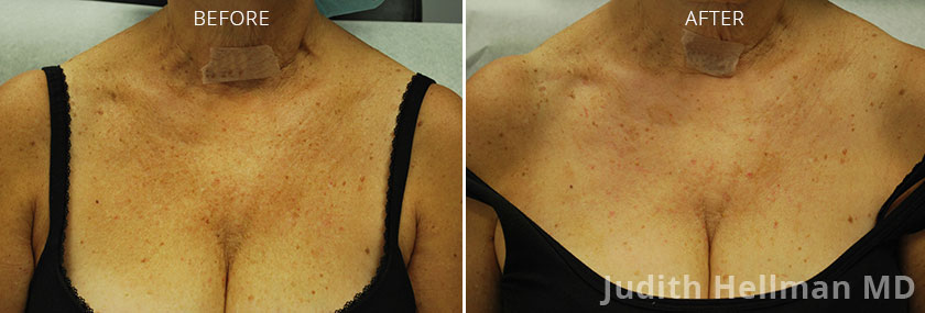 Woman's breasts, before and after Fotofacial RF laser treatment. Breast, front view - patient 3