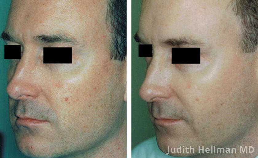 Male face, before and after Fotofacial RF laser treatment. Face, left side view - patient 7