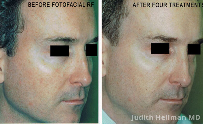 Male face, before and after Fotofacial RF laser treatment. Face, right side view - patient 7