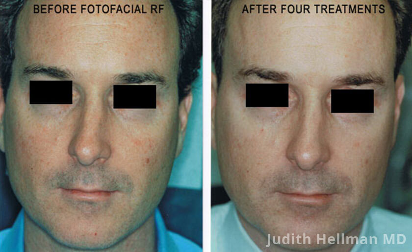 Male face, before and after Fotofacial RF laser treatment. Face, front view - patient 7