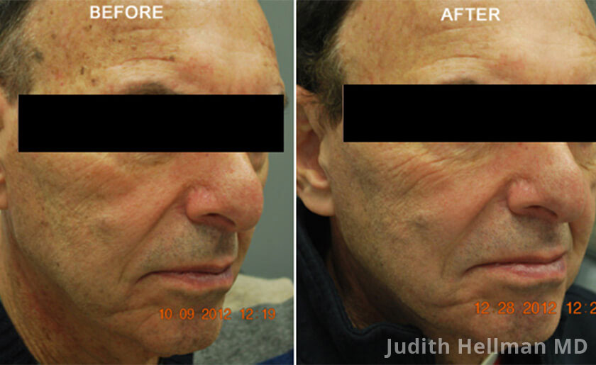 Male face, before and after Fotofacial RF laser treatment. Face, right side view - patient 8
