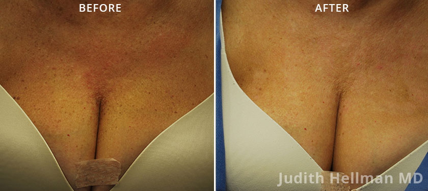 Woman's breasts, before and after Fotofacial RF laser treatment. Breast, front view - patient 1
